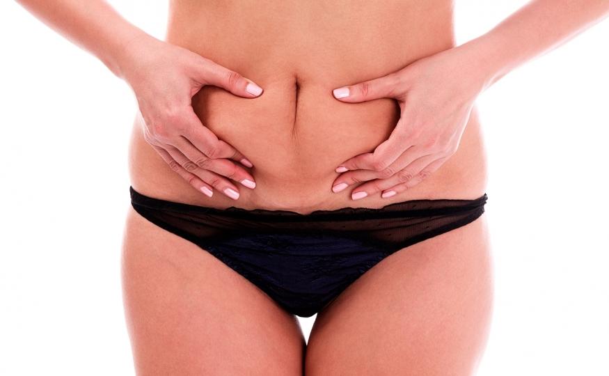 Fazer abdominoplastia acima do peso: com quantos quilos preciso estar?