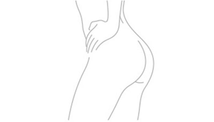 Gluteoplastia (Prótese de Glúteo)