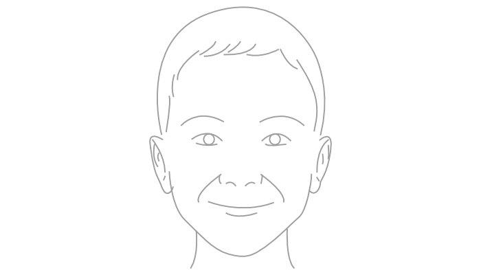 Otoplastia/ Luboloplastia (Cirurgia Plástica das Orelhas)