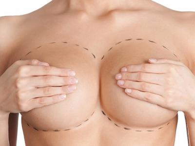 Pontos importantes sobre a redução de mamas