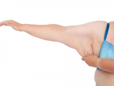 Cirurgia Plástica Pós Emagrecimento: Qual o melhor momento?
