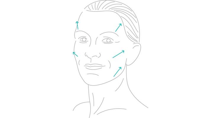 Ritidoplastia (Cirurgia Plástica de Face)
